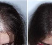 Фотография в Красота и здоровье Косметика У вас выпадают волосы? Облысение? Надоело в Москве 15300