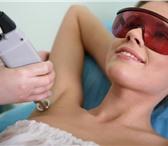 Фото в Красота и здоровье Косметические услуги Новинка! Лазерная эпиляция для избавления в Краснодаре 680